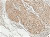 高品質α-突觸核蛋白 (磷酸化Ser129) 抗體